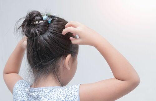 Alopecia en niños: síntomas, causas y tratamiento