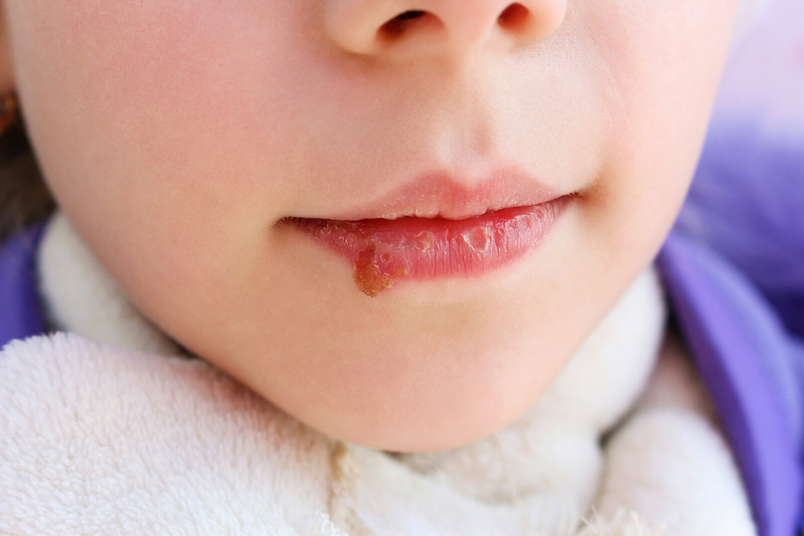 Niño con candidiasis oral.