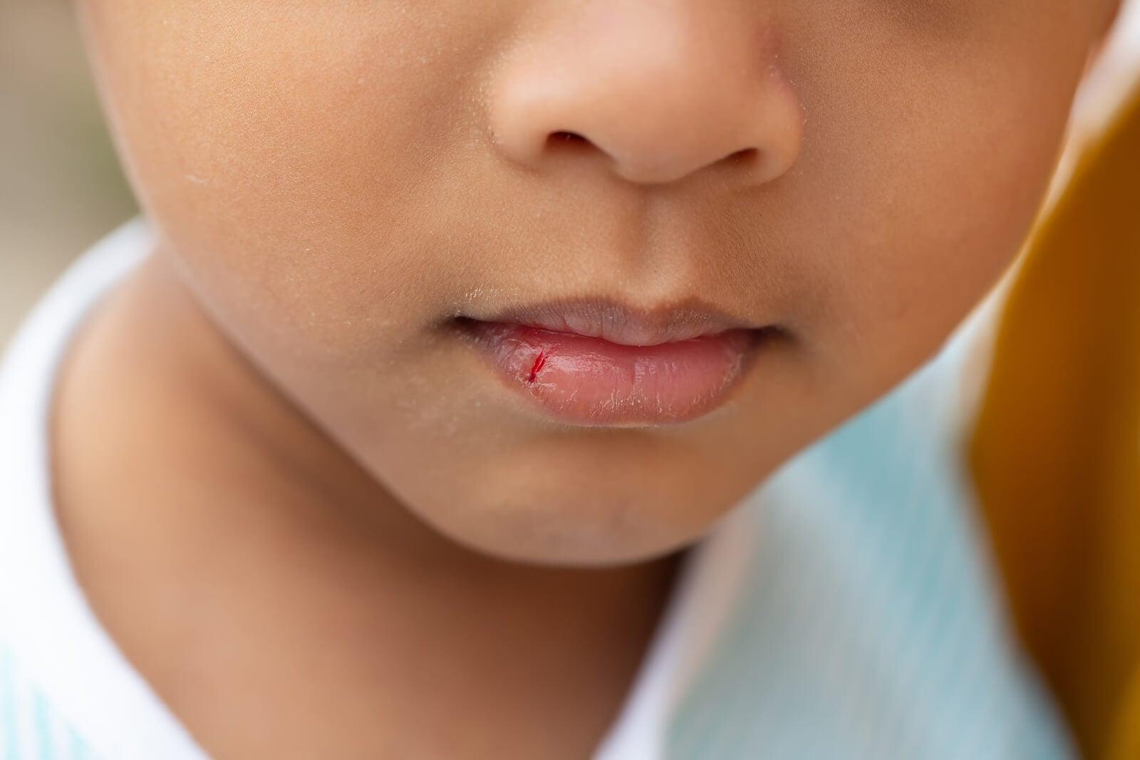 Niño con los labios agrietados.