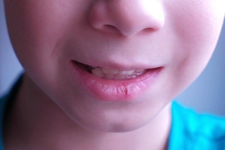 Labios agrietados en niños: causas y recomendaciones
