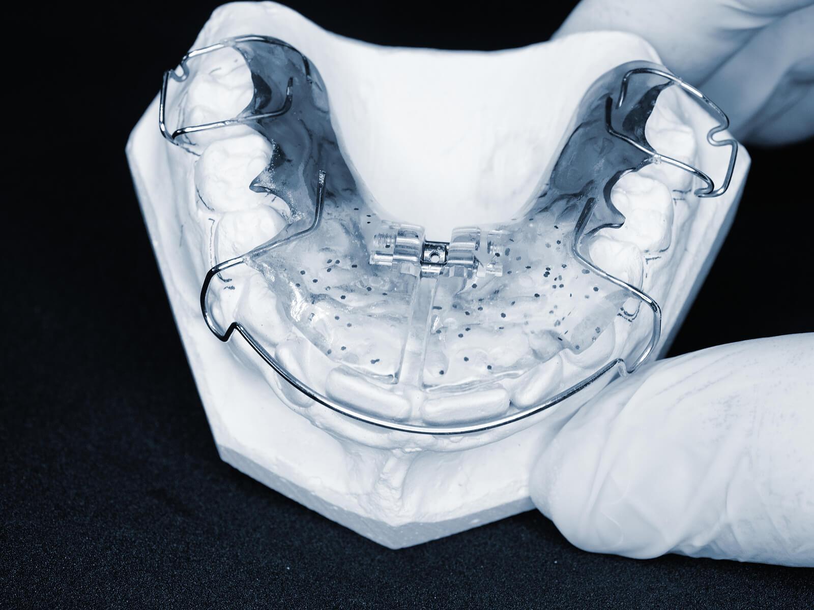Ortodoncia interceptiva.