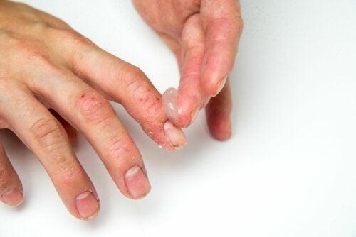 Eccema dishidrótico en niños: ¿cómo tratarlo?