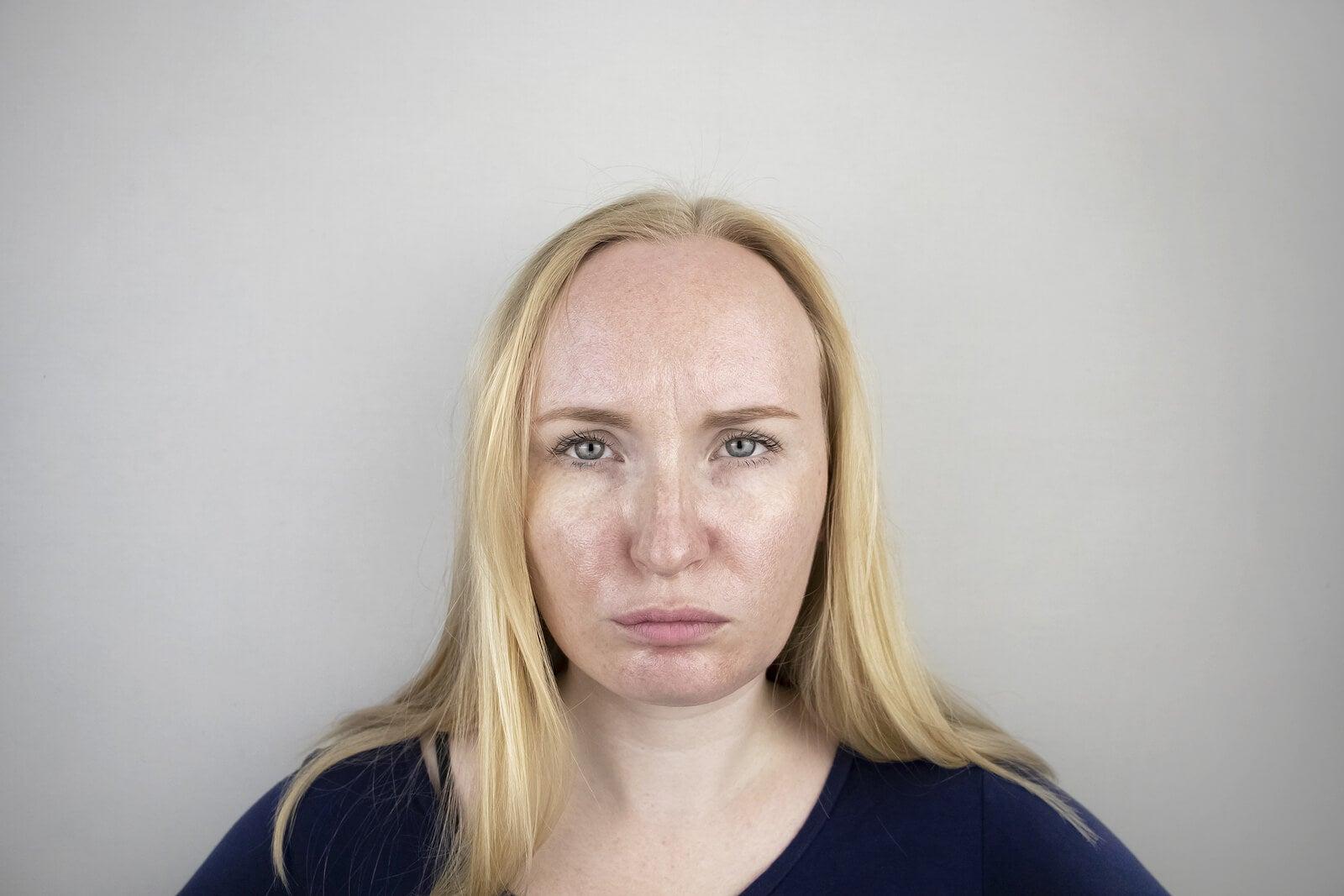 Mujer con la piel grasa.