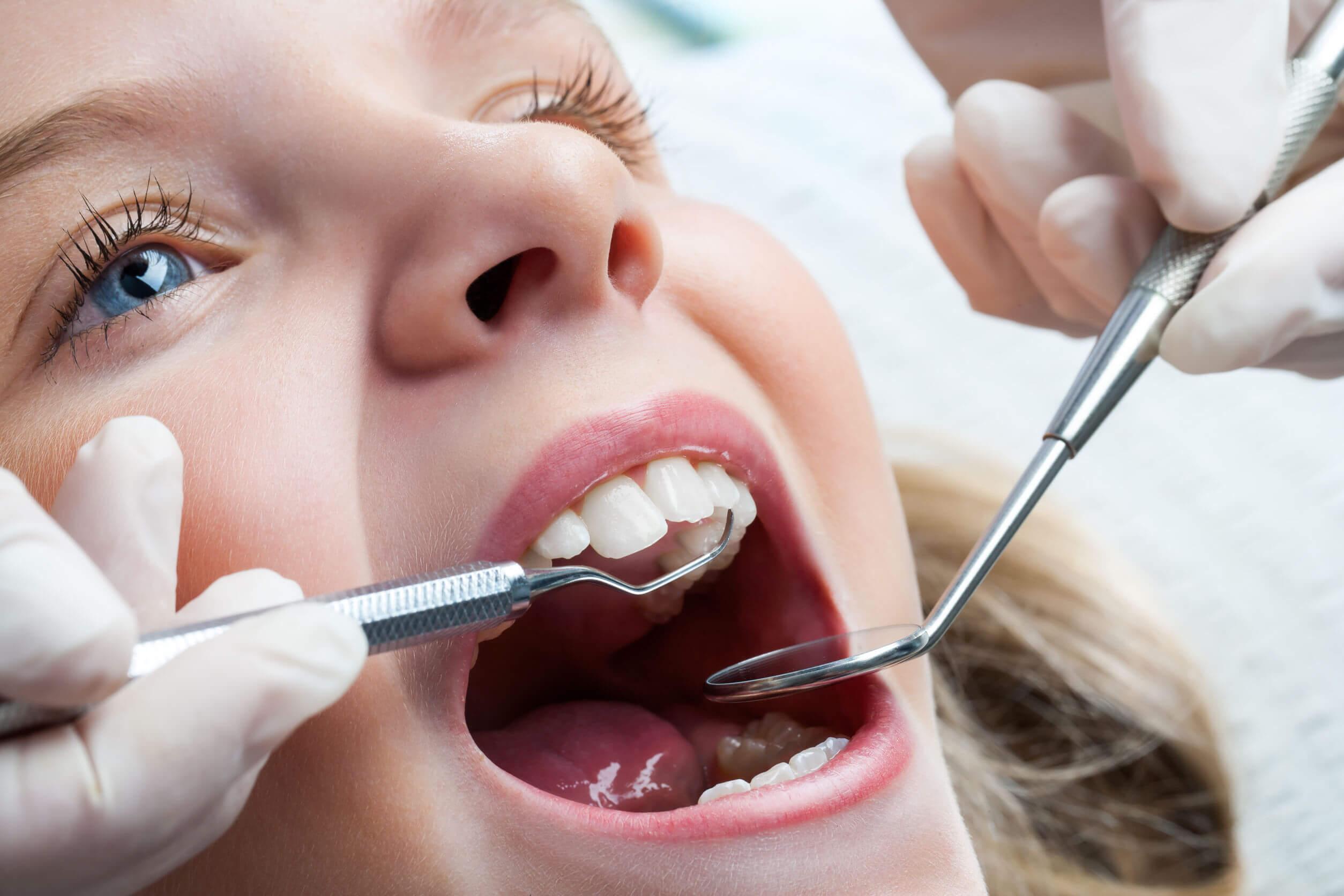 Niña haciéndose una limpieza dental en el dentista.