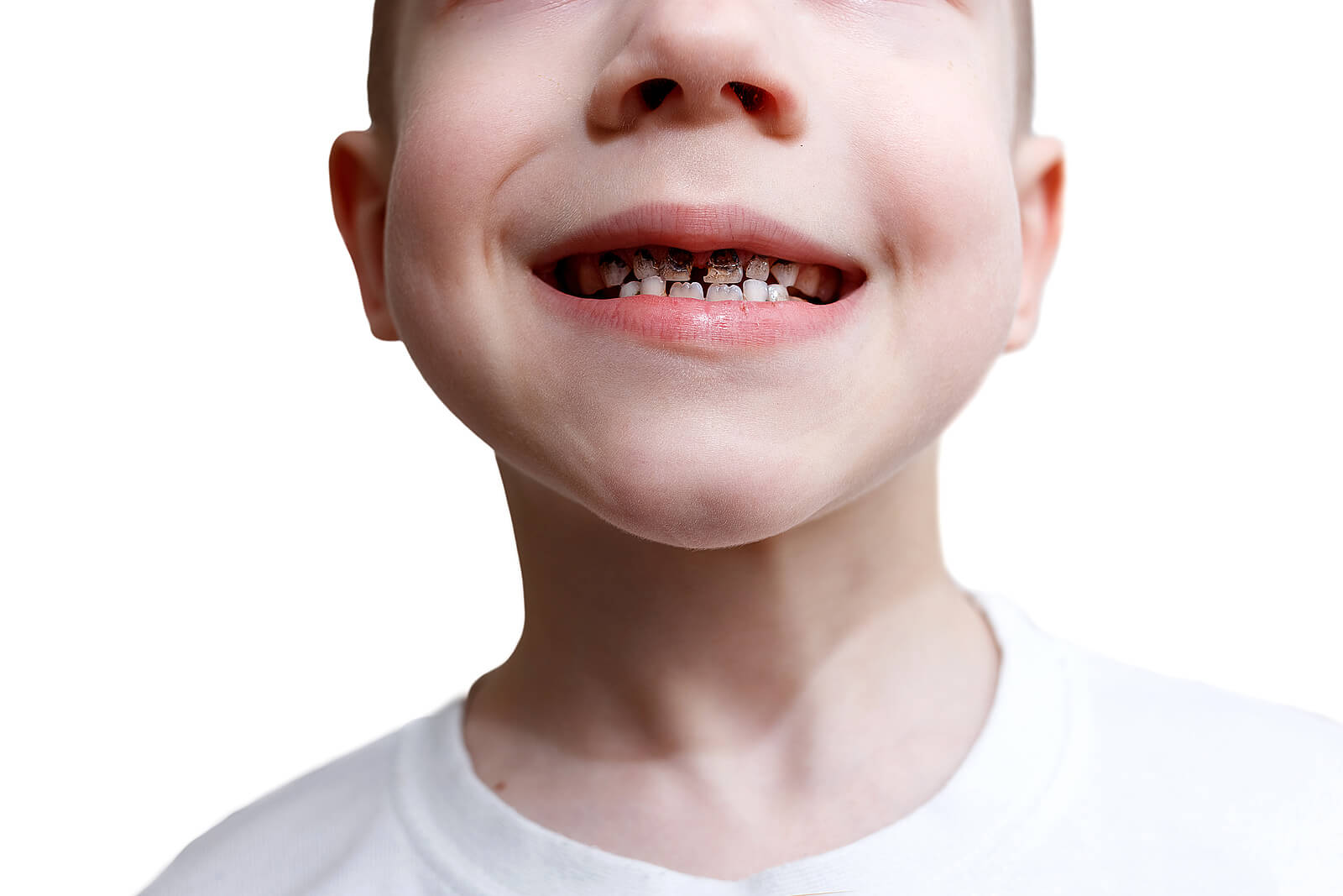 Niño con dientes negros por caries.