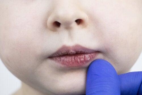 ¿Por qué se secan los labios de los niños?