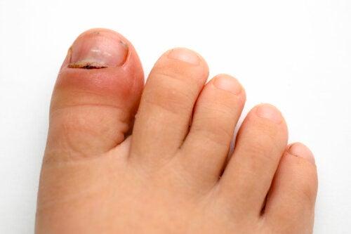 Paroniquia en niños: síntomas, causas y tratamiento
