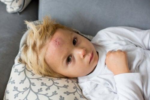 10 trucos para curar chichones en los niños