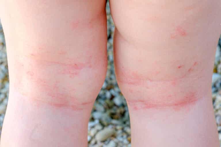 10 preguntas sobre la dermatitis atópica