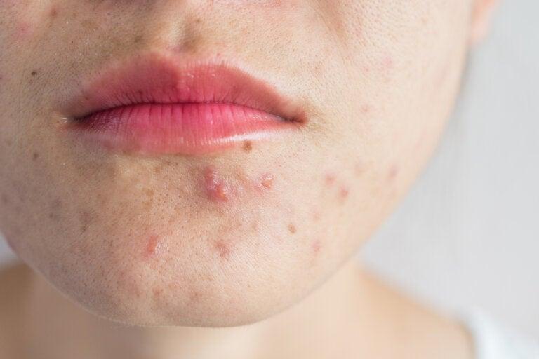 Rutinas para tratar las marcas de acné juvenil