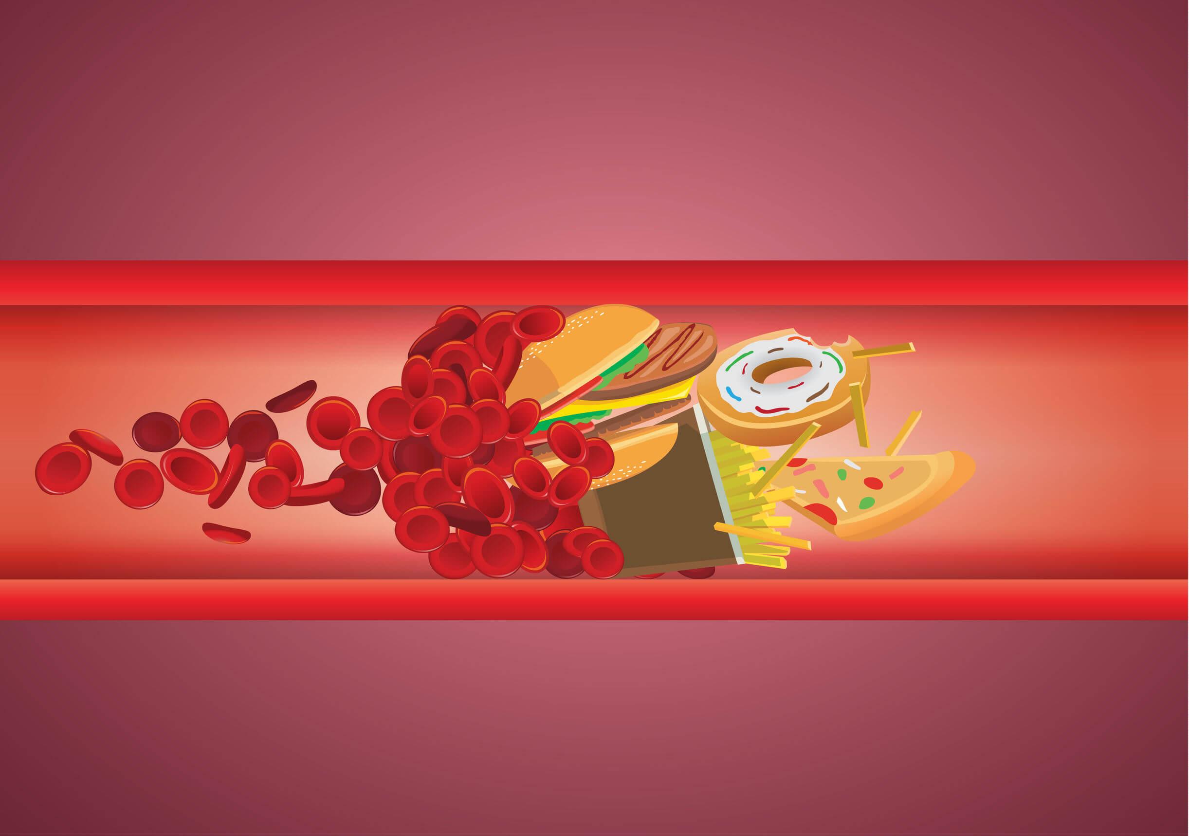 Arterias llenas de colesterol en niños.