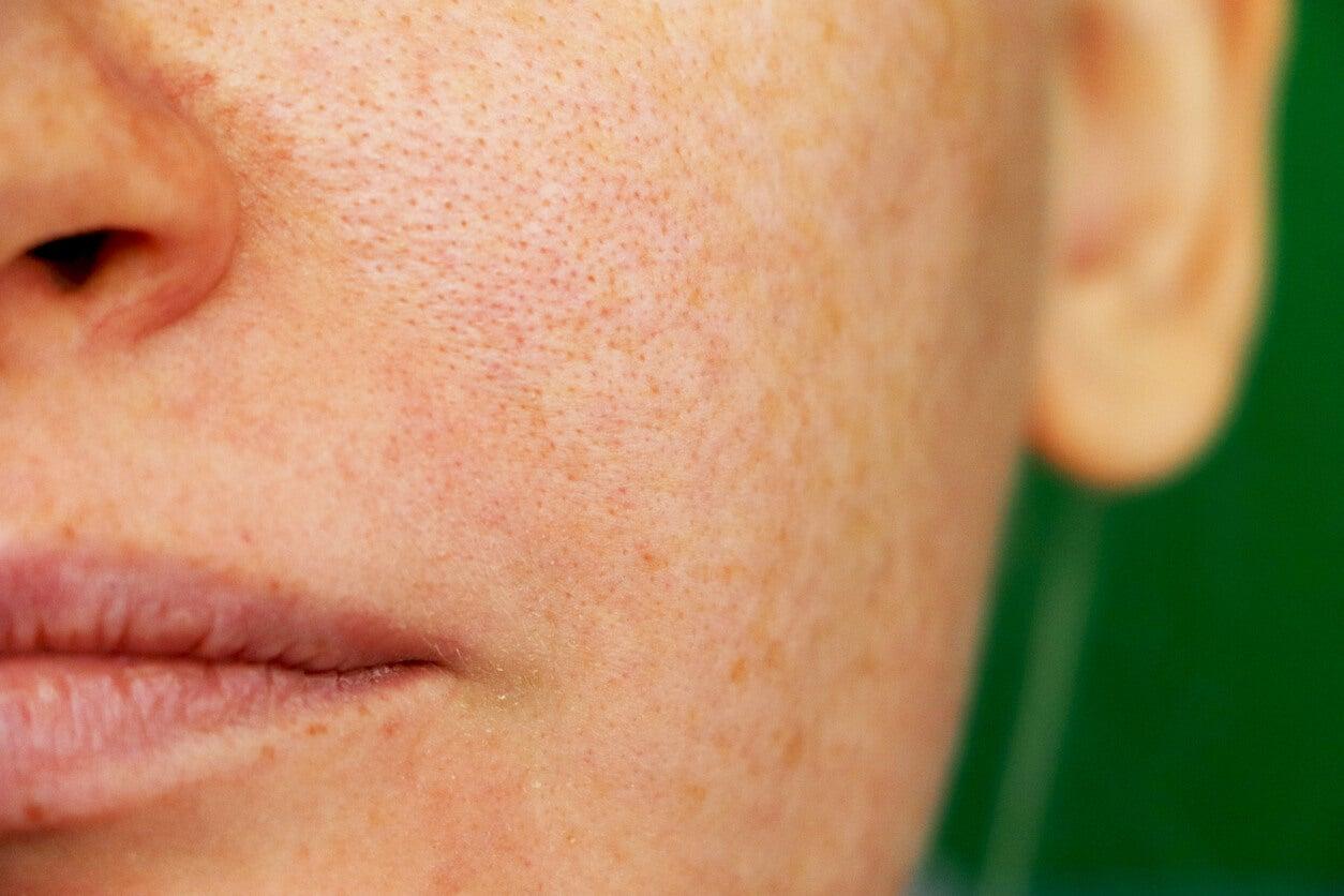 Mujer con melasma en el rostro.
