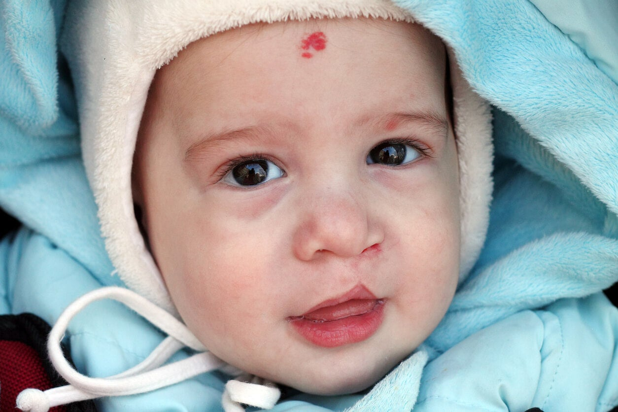 Niño con labio leporino.