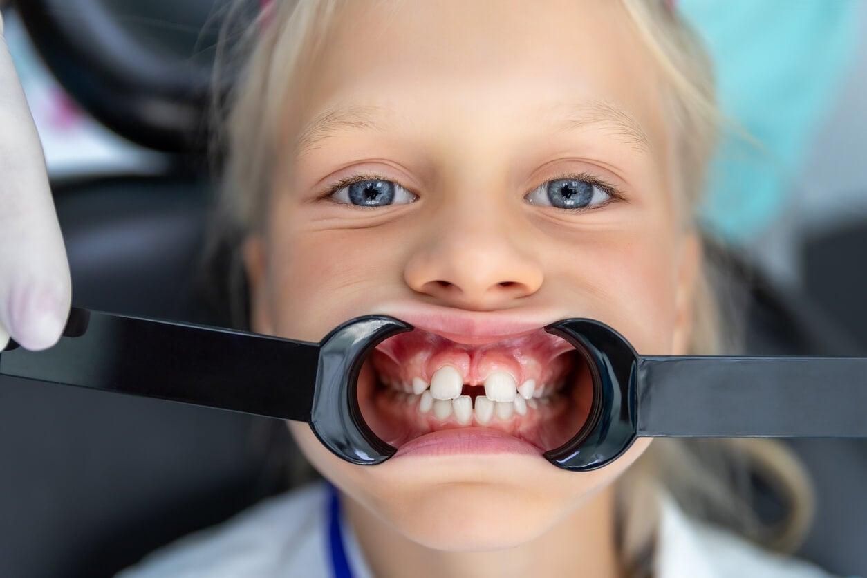 Niña con diastema, una de las causas de la deglución atípica infantil.
