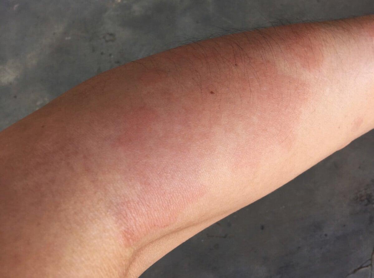 El lupus provoca daños multisistémicos.