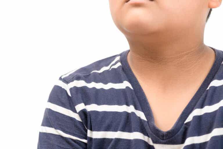 Acantosis pigmentaria en niños: características, causas y tratamiento