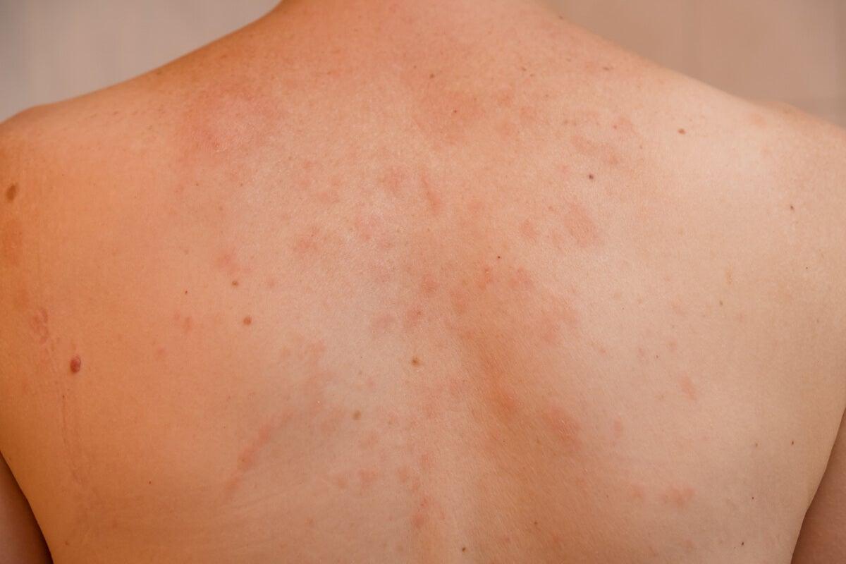 Espalda de un niño con pitiriasis rosada.