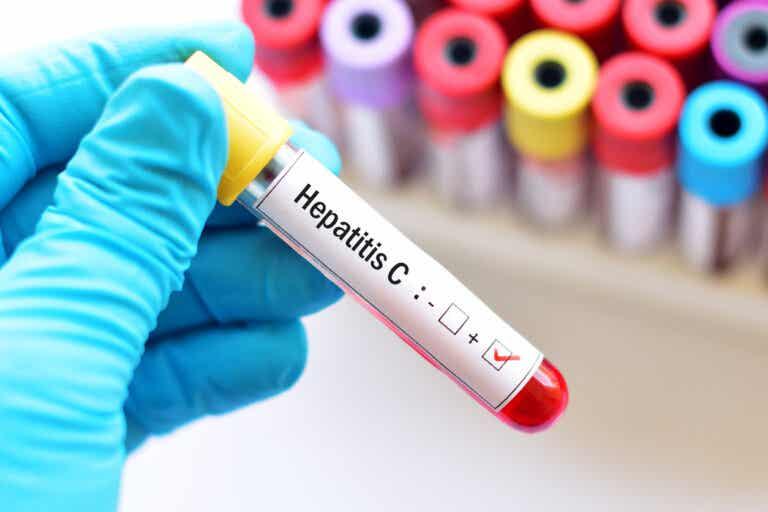 Hepatitis C en el embarazo