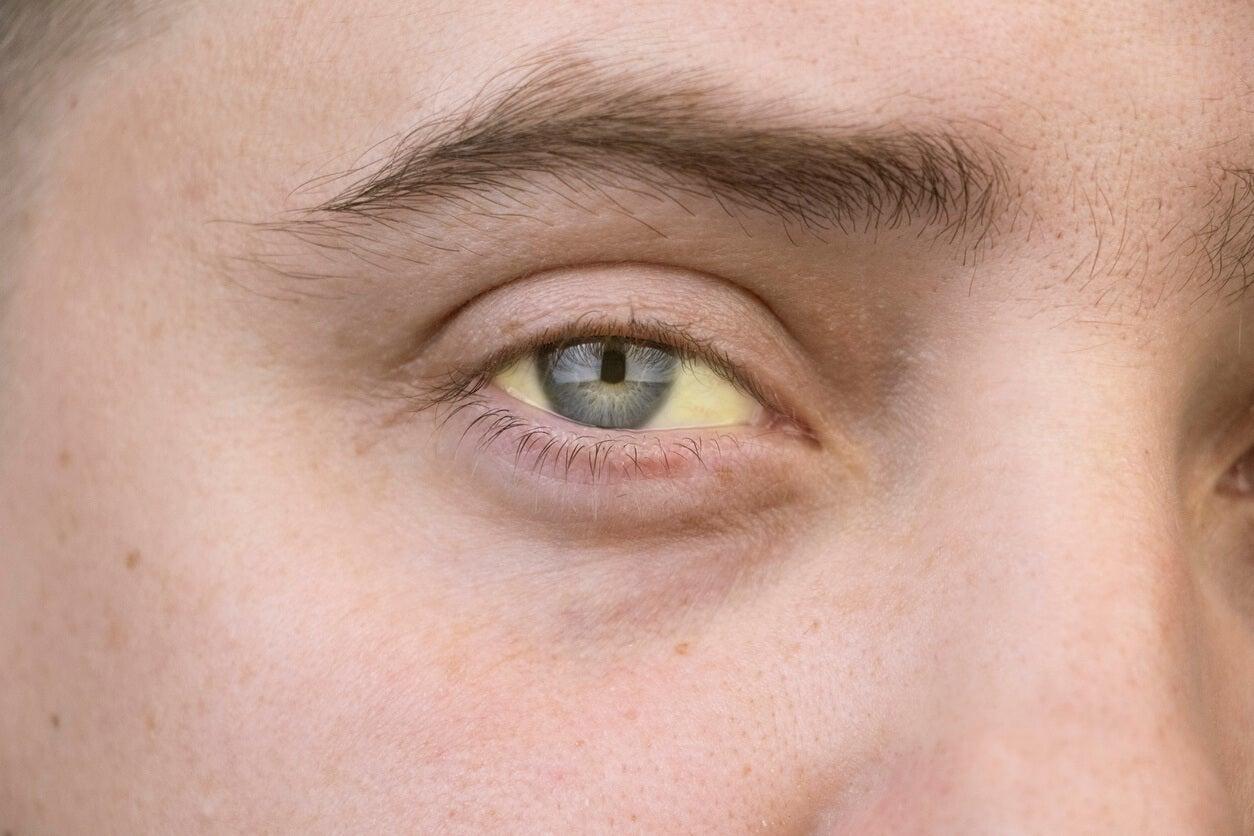 Femme aux yeux jaunes, caractéristiques de l'hépatite C.