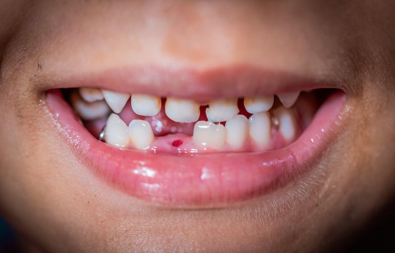 Niño con un diente de leche caído.