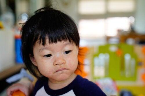 Pitiriasis rosada en niños: causas, síntomas y tratamiento