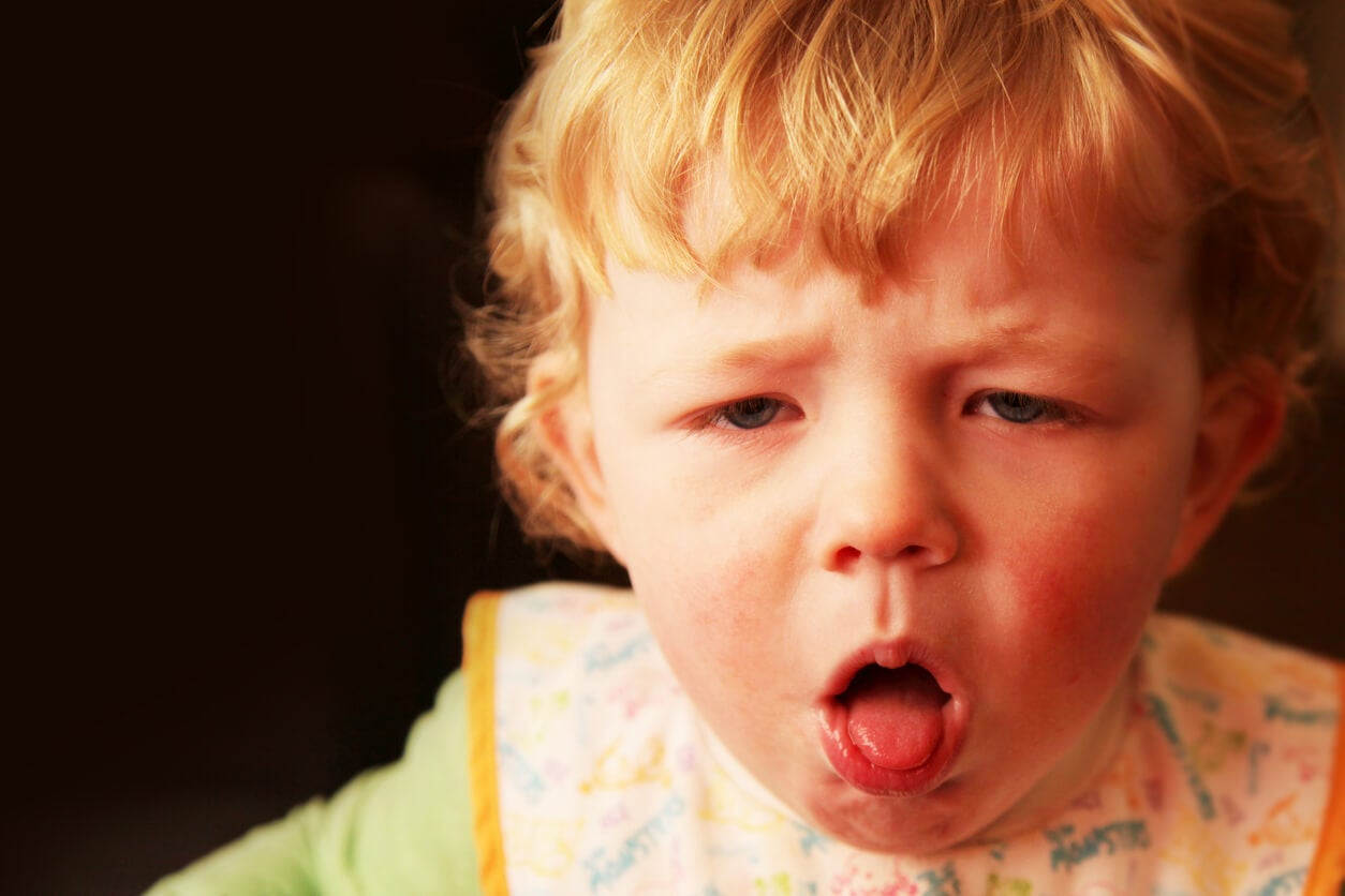 tos disnea falta de aire eritema urticaria anafilaxia