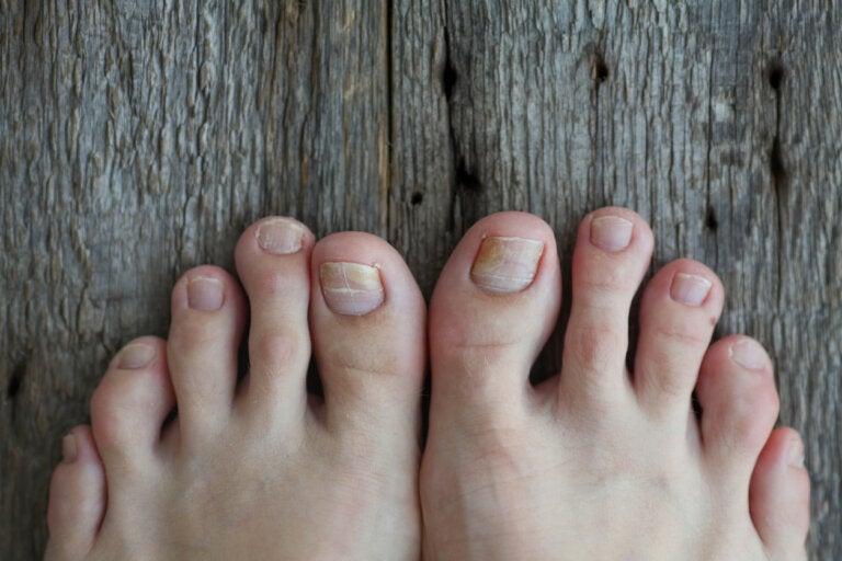 ¿Cómo tratar los hongos en las uñas de los niños?
