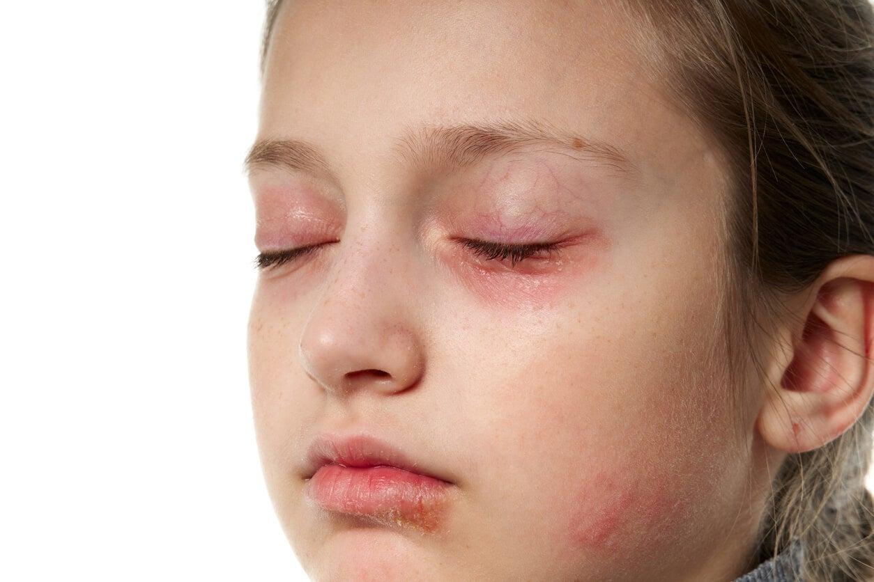 fille bébé visage eczéma dermatite atopique allergique cercles rouges sous les yeux œdème paupière paupières gonflées visage fatigué yeux fermés