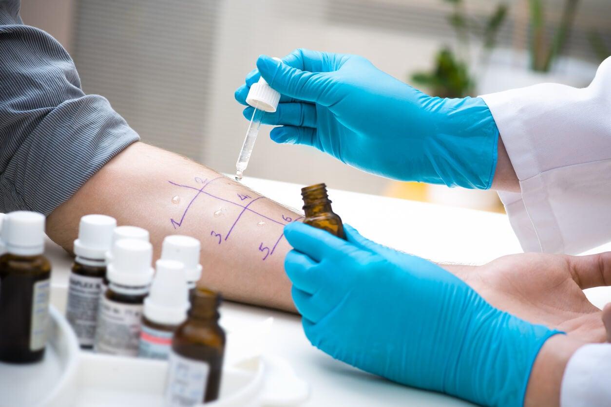 test d'allergie cutanée allergologue de la peau gant d'avant-bras compte-gouttes en latex allergène allergène
