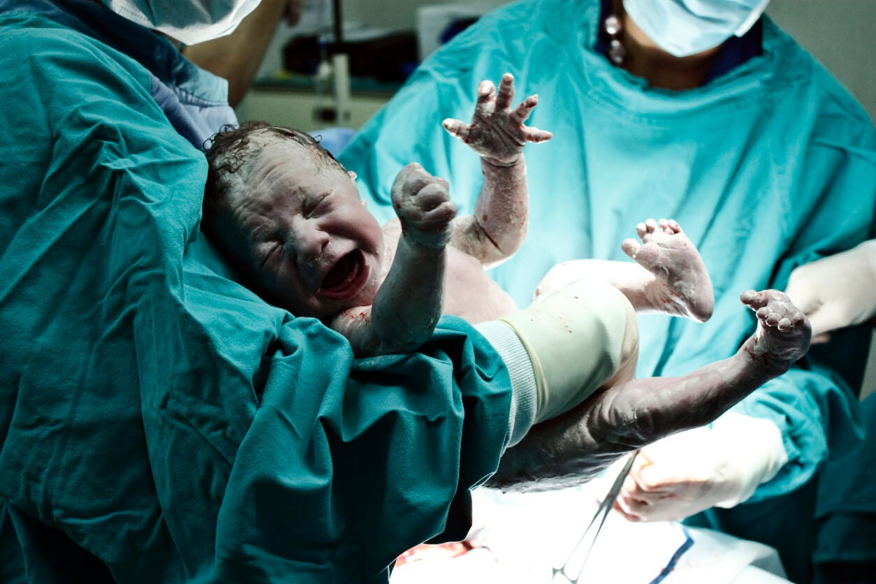 bebe parto cesarea neonato recien nacido obstetra partera neonatolgo llora cianosis intercambio gaseoso