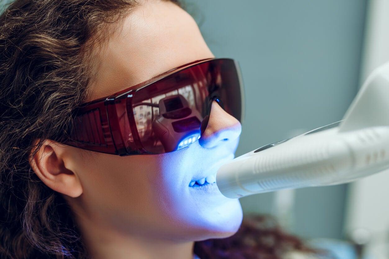 Intervention de blanchiment des dents sur une femme.