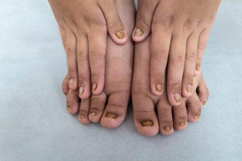 Cambios de color en las uñas de los niños: ¿por qué ocurren y qué indican?
