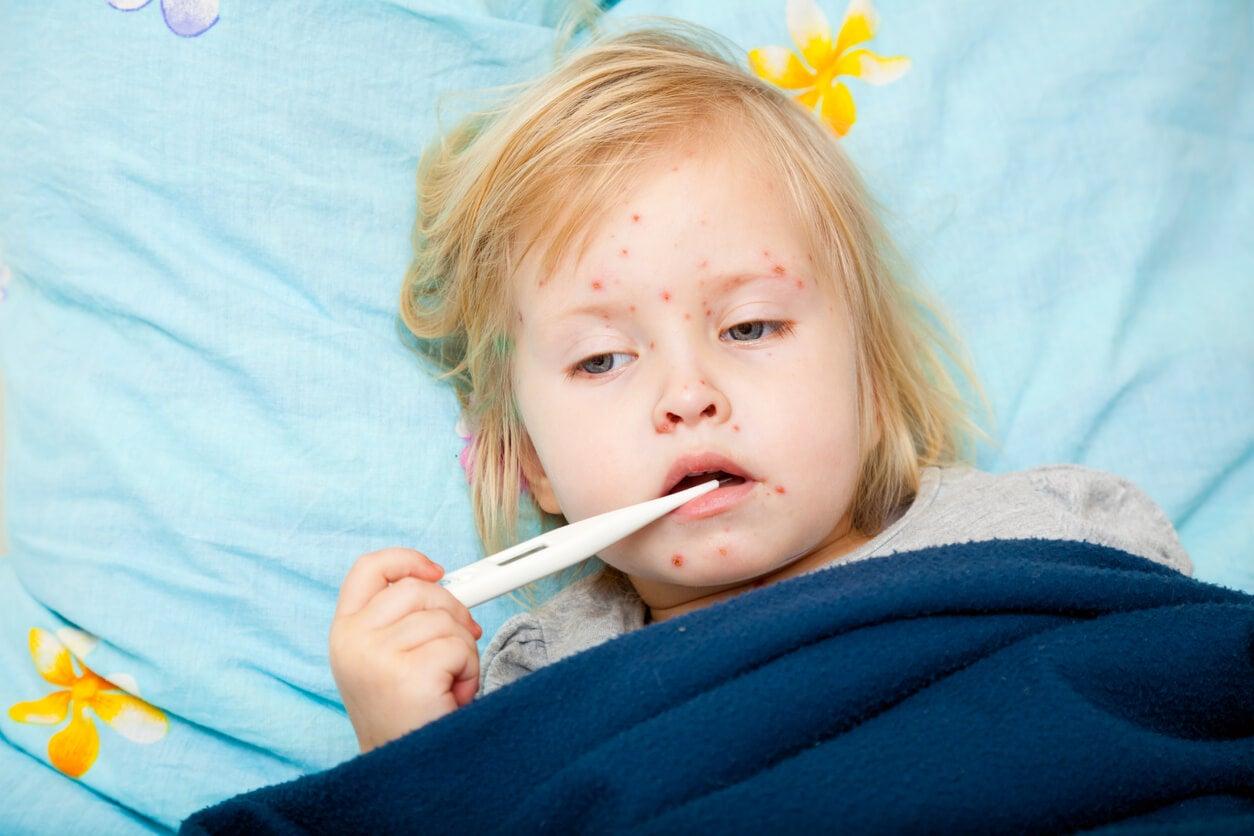 nina nena enferma cama fiebre brote eruptiva erupcion exantema exantematica sarampion decaida