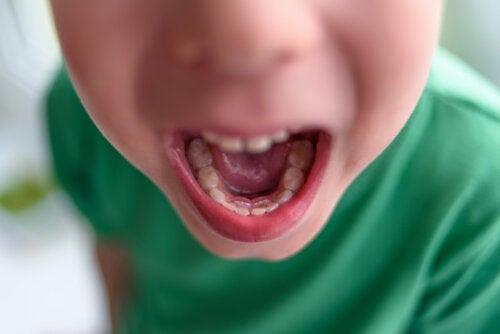 Doble fila de dientes en niños: ¿qué hacer?