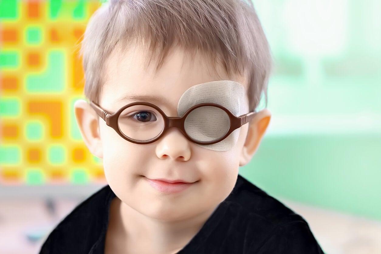 parche ojo oclusion total vision binocular uniocular nino estrabismo ambliopia