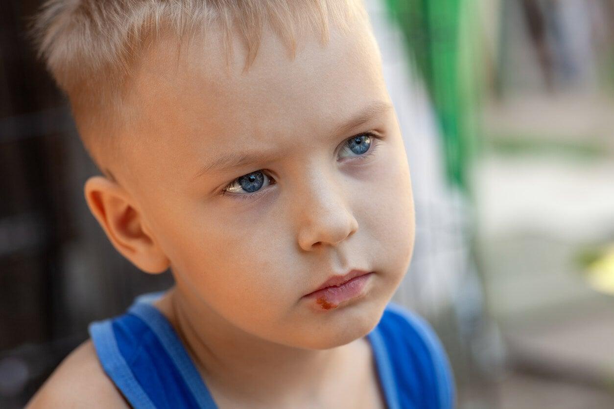 viso bambino herpes labbro inferiore bocca